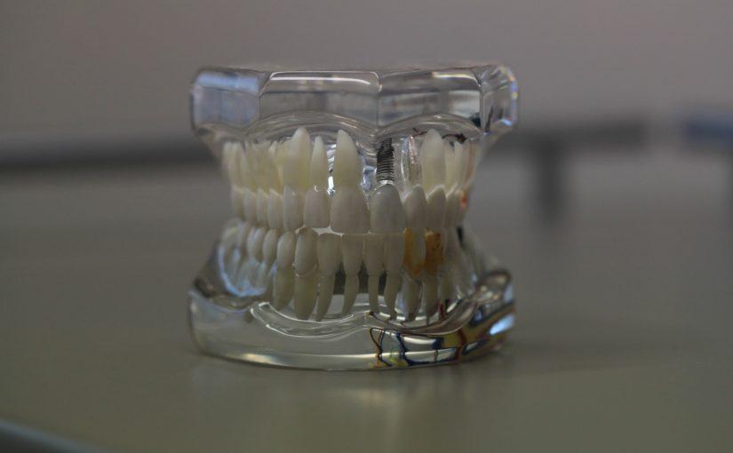 Zła sposób odżywiania się to większe deficyty w zębach a także ich utratę